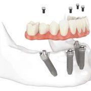 Método eficaz com ótimo custo-benefício substitui dentadura por dentes fixos; saiba o que é protocolo fixo sobre implantes
