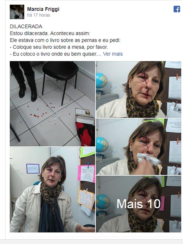 Resultado de imagem para imagens da Professora é agredida por aluno após expulsá-lo de sala: 'Dilacerada'