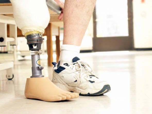 a90b6df48 Projeto Ímpar, iniciativa do Sindicato das Indústrias do Calçado e  Vestuário de Birigui (Sinbi), que já doou 2,4 mil calçados.